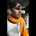 Police pushed lock into youth forehead