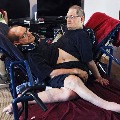 Ronnie and Donnie Galyon Worlds Longest Surviving Conjoined Twin Brothers Died