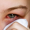 pink eye may be one of the covid symptom