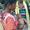 Superstition Killed 2 Month Old Kid as a Person Bit Him Around Navel