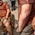Kodali Nani is behind attack on me says TDP leader Pattabhi