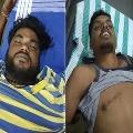 Chandrababu Shocked Over Pawan Fans Die