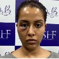Raiza Wilson alleges skin care expert damages her face with false treatment