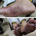 AP CID Clarifies about YCP MP Raghu Rama Raju wounds