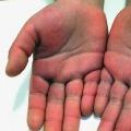 kawasaki disease linked to corona shocks Newyork